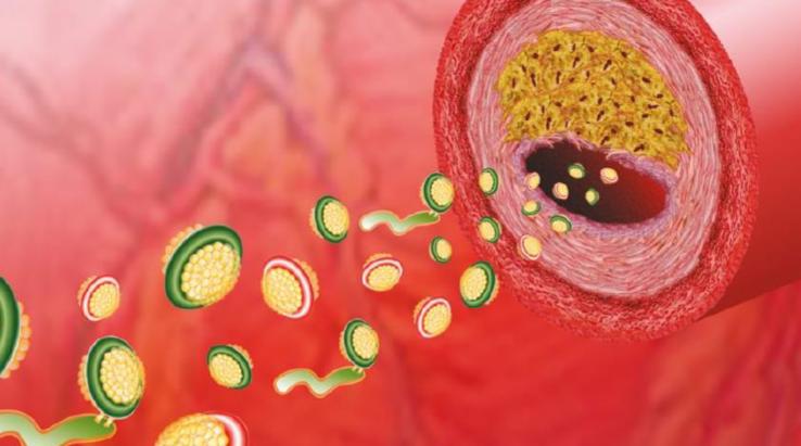 Jak naturalnie obniżyć wysoki poziom cholesterolu