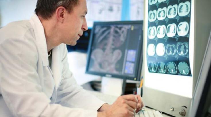 Promieniowanie z obrazowania diagnostycznego może powodować uszkodzenie komórek