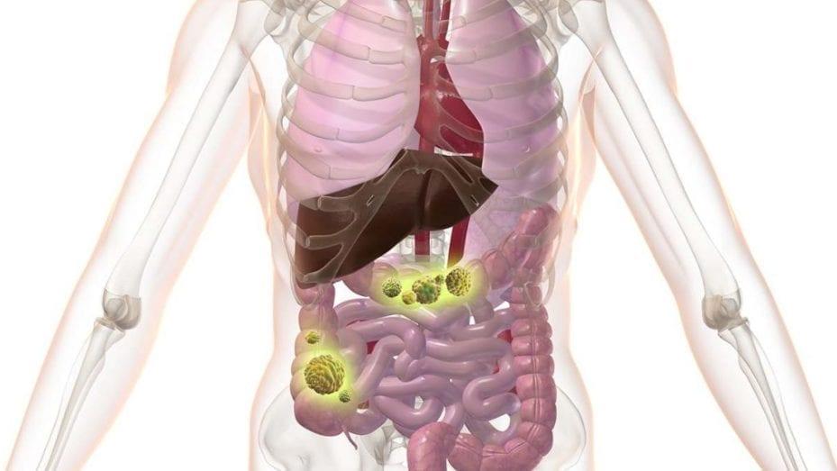 Nowa metaanaliza łączy raka jelita grubego z niskim poziomem witaminy E
