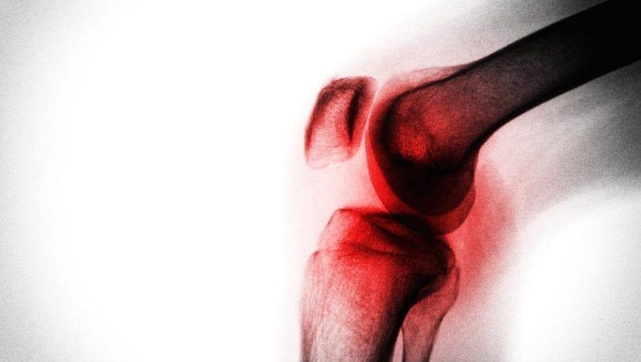 Siarczan chondroityny w chorobie zwyrodnieniowej stawu kolanowego