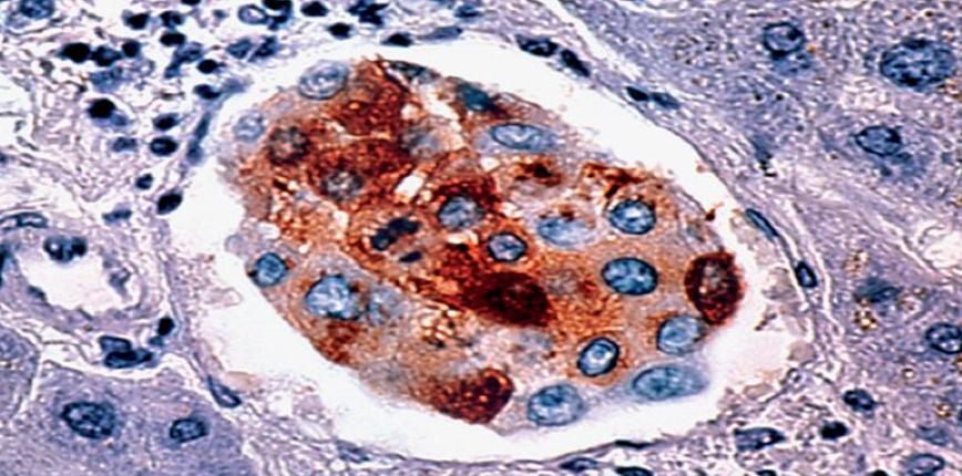 Mikroskładniki odżywcze skutecznie zwalczają raka piersi na różnych etapach rozwoju