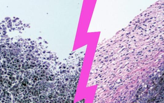 Mikroskładniki odżywcze hamują kluczowe enzymy w mięsakach