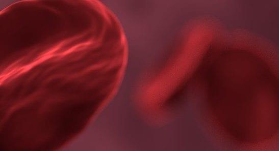 Jeden na pięć zgonów spowodowany jest sepsą